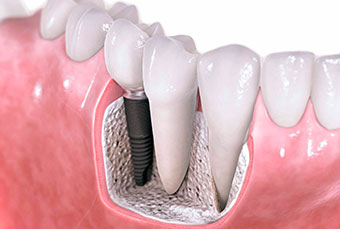 Импланалогия зубов